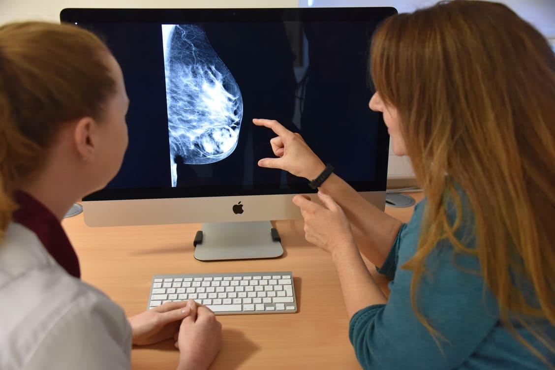 Assessors needed for Mammography Associate apprenticeships