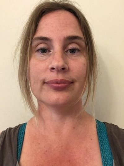 Blog: A day in the life of a… Trainee Breast Clinician